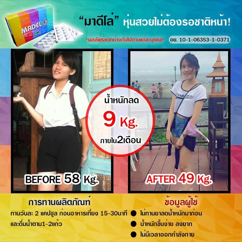มาดีโล่ Before After คุณครีม ลดน้ำหนักได้ 9 kg