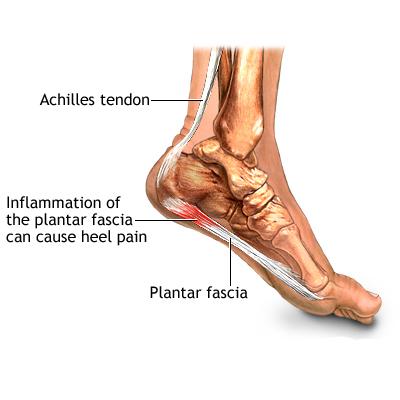 ผังผืดส้นเท้าอักเสบสามารถป้องกันได้