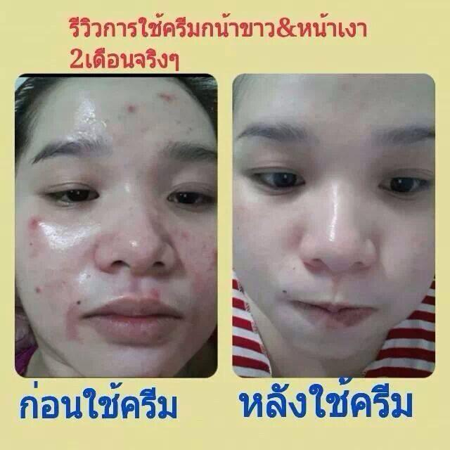 Princess Skincare รีวิว